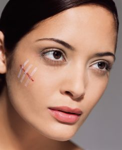 Treatment for Scars on Face